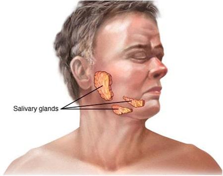 بسیاری از افراد مسن با افزایش سن ، خشکی دهان را تجربه می کنند