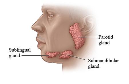 درمان خشکی دهان بستگی به علت دارد