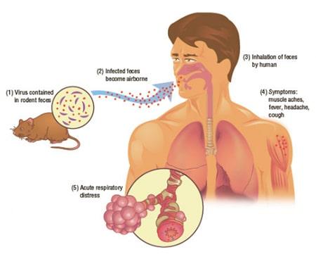 راههای انتقال هانتا ویروس